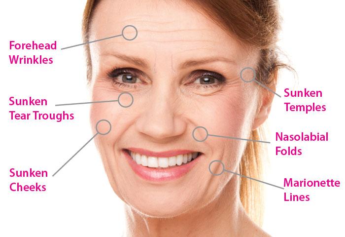 AestheFill | Polylactic Acid Dermal Filler - EstheMedica